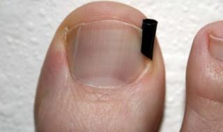 Cómo se deben tratar las uñas encarnadas al correr.